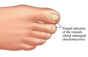 Vanlige Cures for tånegl sopp
