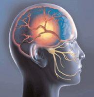 Hva er meningen med migrene?