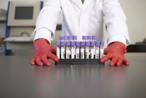 Tester for glutaminsyre