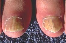 Hvordan finne en vellykket Fungal Nail Treatment