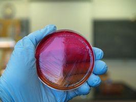 Isolering av noen antibiotikaresistente Staph Aureus
