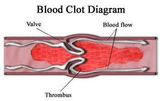 Symptomer for blodpropp
