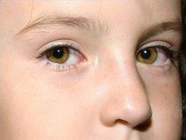 Nasal Drip hos barn