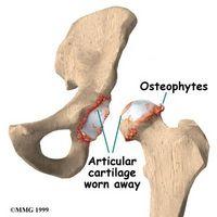Bone Spur Treningstips