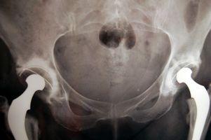 Bekhterevs & Hip Pain