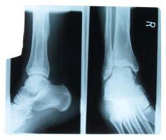 Hvordan diagnostisere problemer av femur Bone