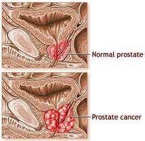 Bivirkninger av strålebehandling for prostatakreft