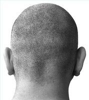 Alopecia Aerota Steroid Behandlinger