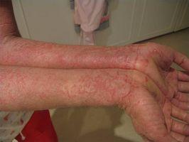 Seboreisk eksem smittsomt