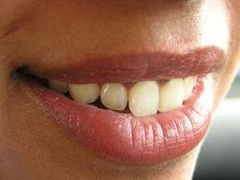 Hvordan bruke kosttilskudd for å forebygge periodontal sykdom