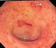 Hva er Elemental Diet Ulcerøs kolitt?