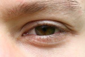 Hjemmelaget øyedråper