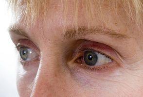 hvite øyne uten blodårer
