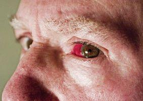 Hva er årsakene til Busted blodårene i øynene?