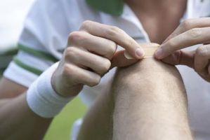 Hvordan vet jeg om du har et infisert sår