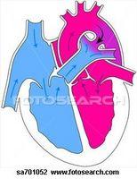 Hjertesvikt Behandlinger