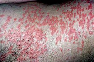 Årsaker til psoriasis