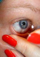 Hvor ofte bør du få Contact Lens Eye Måling?