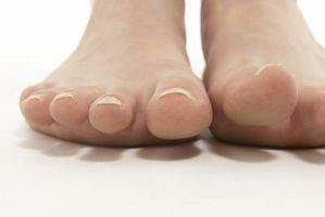 Avrevne Sener i Foot Recovery