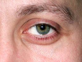 Hva er behandlingen for en Sticky øyne fra et hode kaldt?