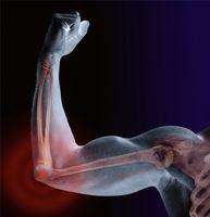 Hvordan til å behandle multippel sklerose Muskelkramper