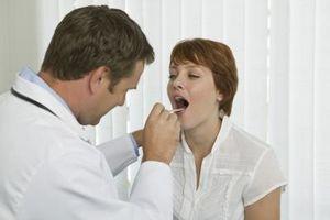 Hvordan behandle en hvit tungen