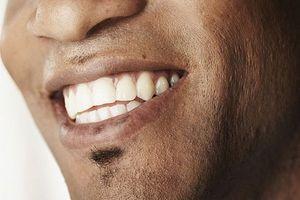 Hvordan å bleke tennene dine