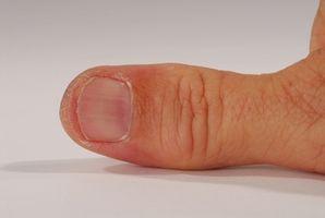 Slik reparerer Trigger Thumb