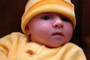 Behandling baby acne