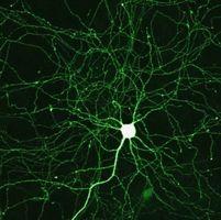 Oppsummering av narkotika mål i Alzheimers sykdom behandling