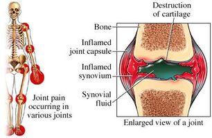 betennelse i skulder og psoriasis artritt