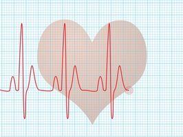 Hjertestans & Intestinal stenose