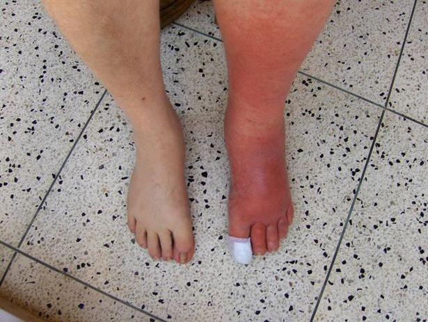 Symptomer på betennelse i foten
