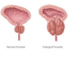 prostata medisin bivirkninger