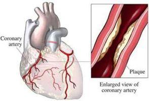 Hvordan er Kolesterol laget i leveren?