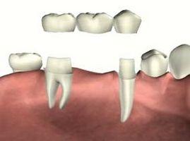 Hvordan Clean Under en Dental Bridge