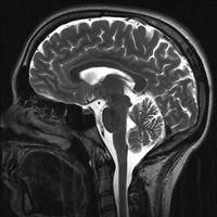 Typer av Brain Cancer