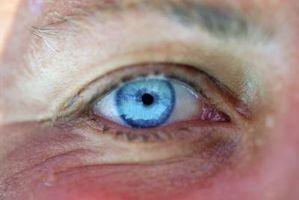 Hva slags medisin er tilgjengelig for mørke ringer under øynene?