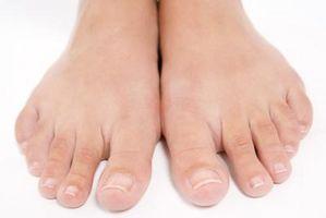 Slik Cure Common negl og tånegl sopp naturlig