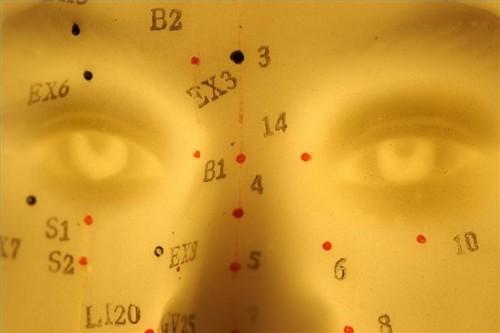 Hvordan å behandle vedvarende allergisk rhinitt med Akupunktur