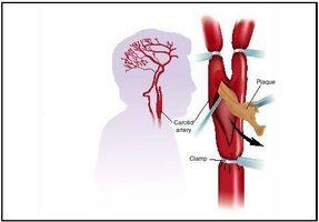 Hvordan å tømme en arteria carotis Blokkering