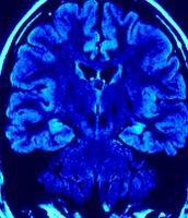 Hvordan redusere risikoen for hjerneslag