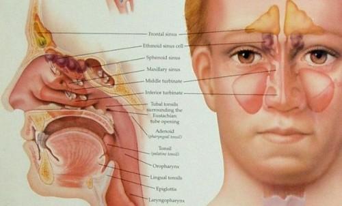 Allergi og Sinus infeksjoner