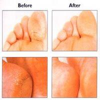 Tørr hud føtter