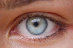 Hva er Vigamox øyedråper?