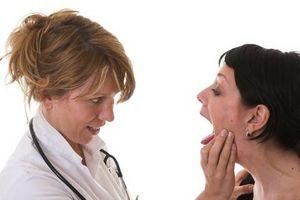 Hvordan løse tonsillitt