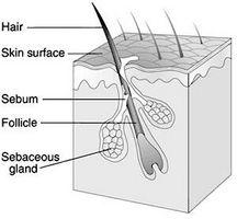 Cure for en inngrodde hår