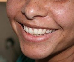 Homøopatiske midler for sykt tannkjøtt