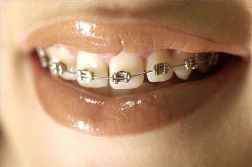 hvite prikker på tungen