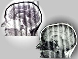 Degenerative Hvit Matter Brain Disease